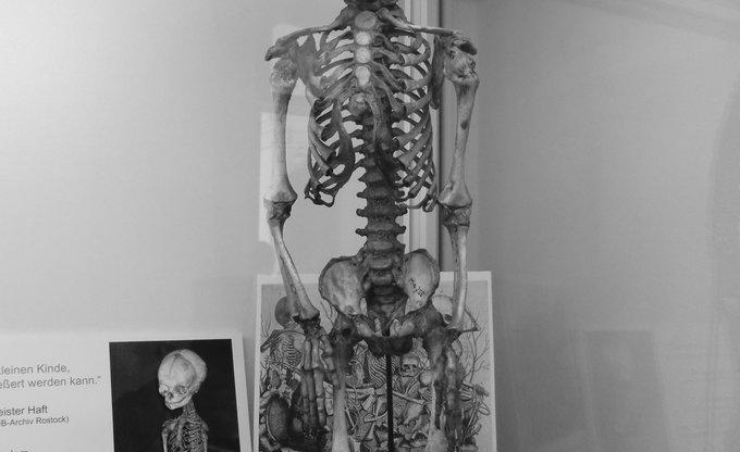 Little Skeleton