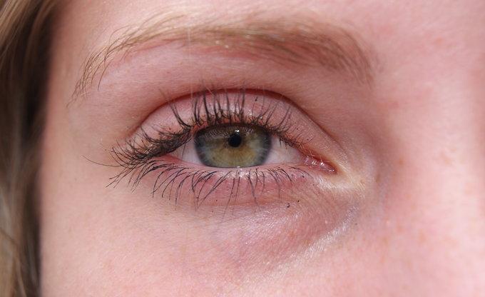 Grüne Augen, Froschnatur.